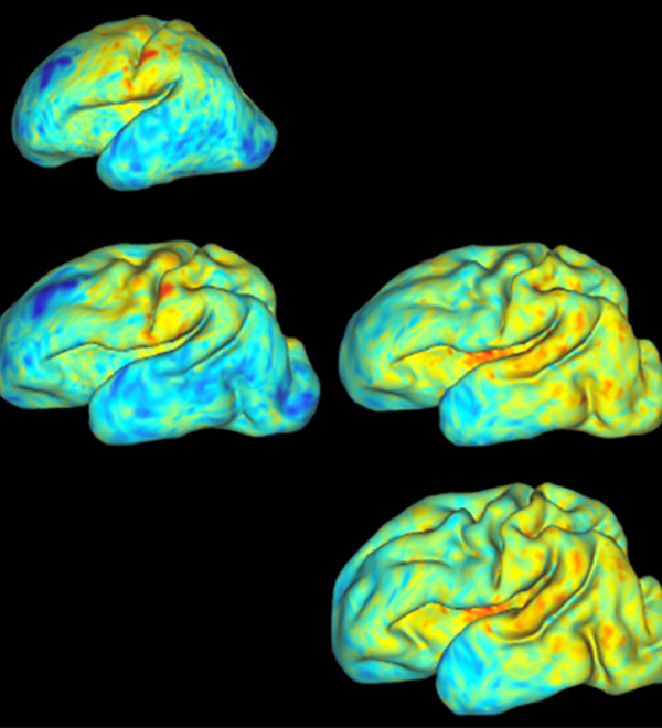 3-D maps of four babies' brains