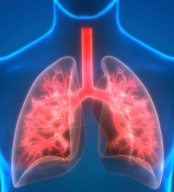 Lung Rejection
