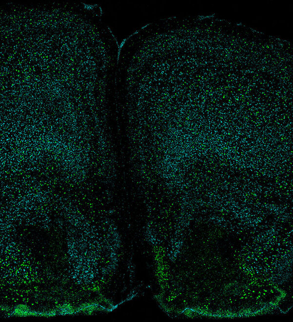 Neurons with IL17R foreweb