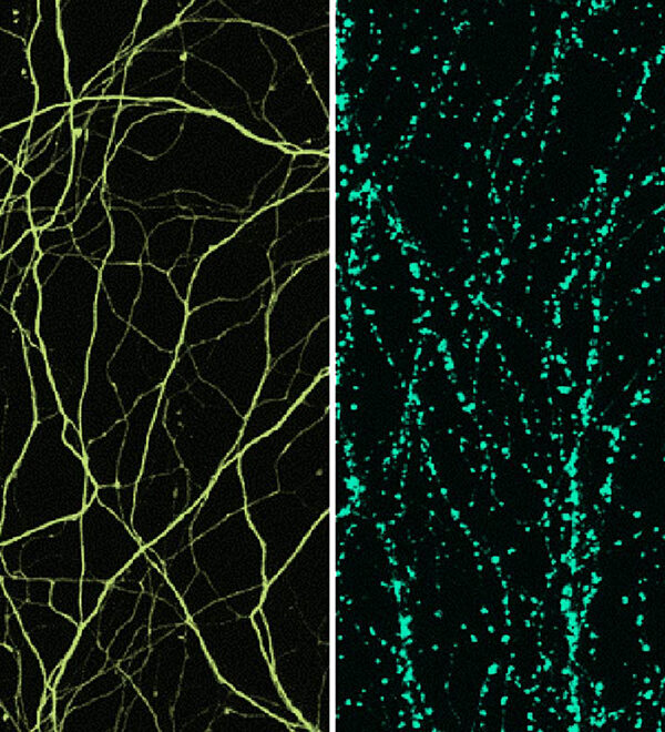 Nerve axon degeneration graphic